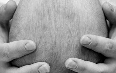 Plagiocephalie